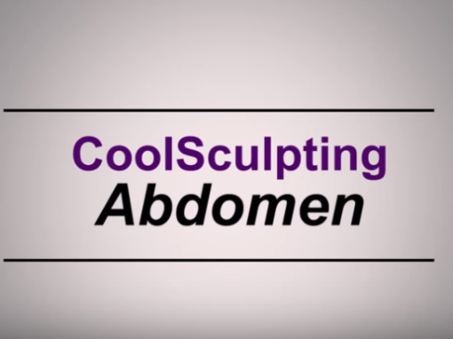 Video: CoolSculpting of the Abdomen